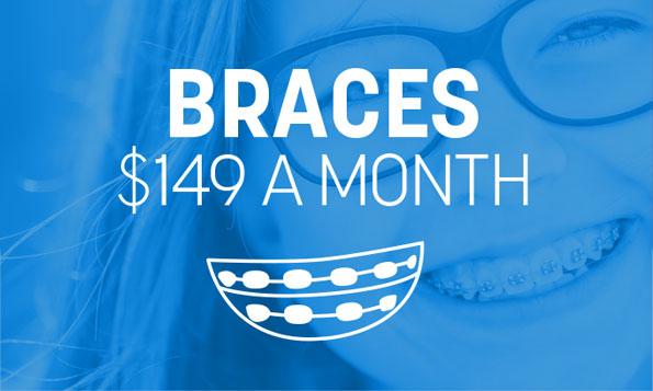 offer for braces