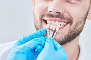 dental veneers tx, veneers held up to bearded man's teeth