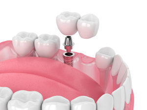 a model shows dental implant options before a dental implant procedure