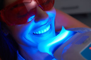a person undergoes teeth whitening services